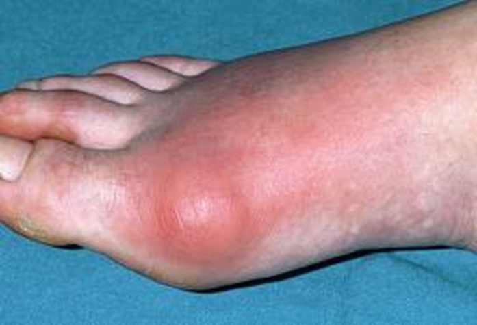 Dr. Marc Blatstein – Gout & its effects if left untreated
