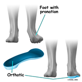 Paint-orthotic tarsal tunnel
